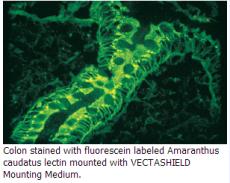 Vector防荧光萃灭封片剂